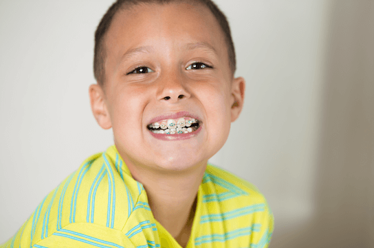 Why We Recommend Starting Early Orthodontic Treatment
