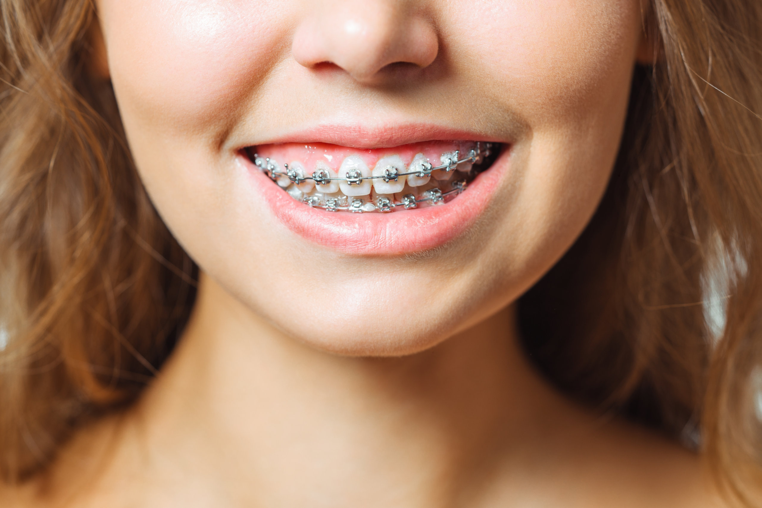 Girl with Gummy Smiles showing Orthodontics